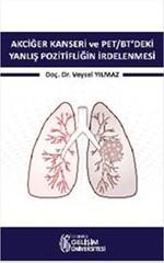 Akciğer Kanseri ve PET-BT'deki Yanlış Pozitifliğin İrdelenmesi