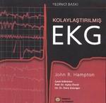 Kolaylaştırılmış EKG