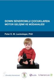 Down Sendromlu Çocuklarda Motor Gelişimi ve Müdahalesi