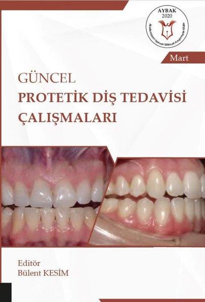 Güncel Protetik Diş Tedavisi Çalışmaları.pdf