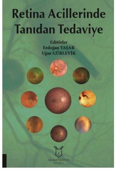 Retina Acillerinde Tanıdan Tedaviye.pdf